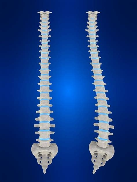 What does limited scoliosis with