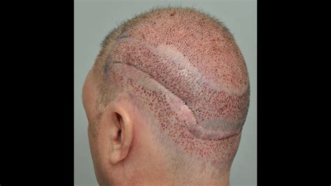 Alopecia Areata - How I Deal With It - YouTube