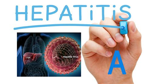 Best Natural Foods to Treat Hepatitis A-Best Health and