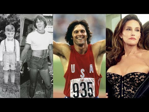Bruce Jenner Emerges With New Hair Plugs? Pictured Without