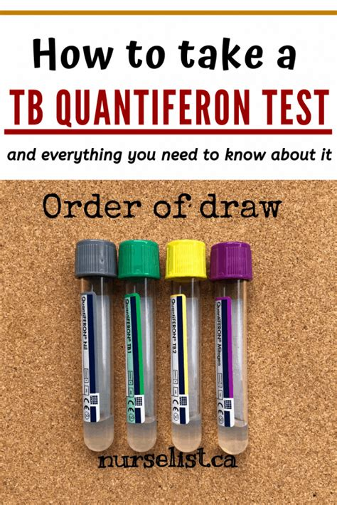 How to Take TB QuantiFeron Test & Everything You Need to